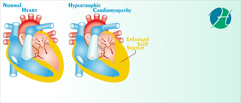 Septal Myectomy and Septal Ablation for Hypertrophic Cardiomyopathy | HealthSoul